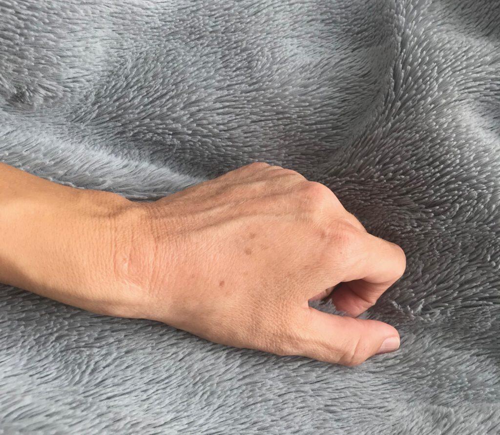 Meine Altersflecken auf den Händen erinnern mich an meine geliebte Oma.